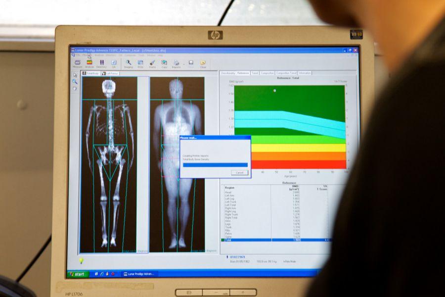 medidas - DEXA densitometria ossea de absorção de raios x