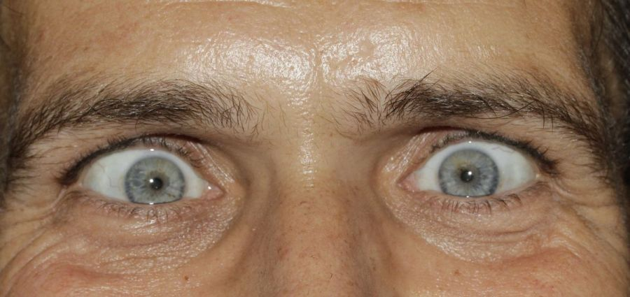 medidas - olhos ansiosos por ir a balanca