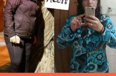 Patricia Elimina 50kg Com Dieta Cetogenica E Resolve Se Tornar Carnivora